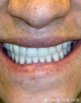 vestibuloplasty smile after