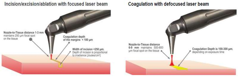 Figure 3. Laser-tissue interaction with focused (250 micrometer spot size) and defocused (500-800 micrometer spot size) laser beam. The handpiece is pen-sized, autoclavable and uses no disposables.