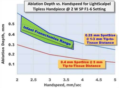 Figure 4. Ablation Depth in water-rich soft tissue with the LightScalpel tipless dental handpiece in 2 watts Repeat F1-6 (20 Hz, 30 msec) SuperPulse (150 Hz, 13 mJoules) mode.