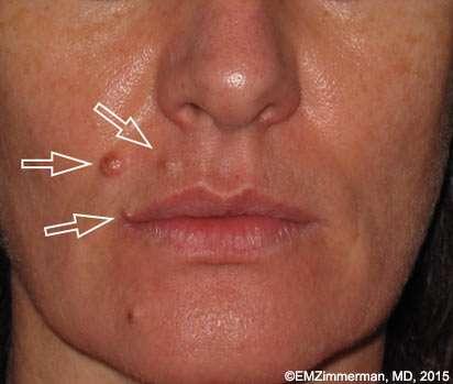 benign scar lesions before