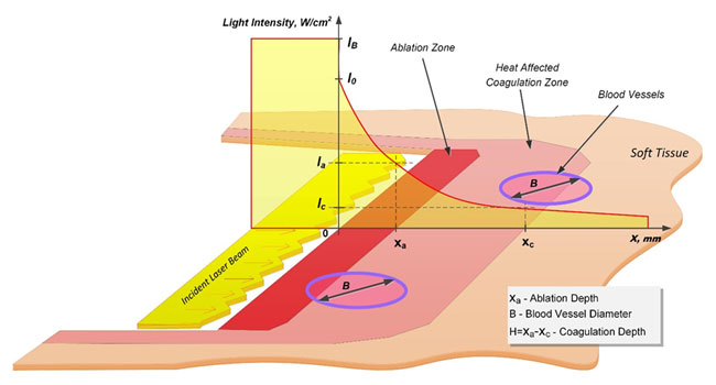 laser energy tissue absorption