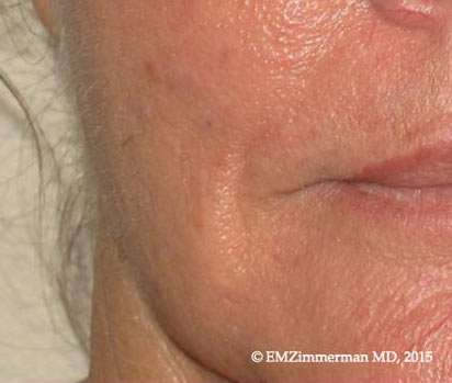 nevus ablation after