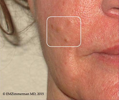 nevus ablation before