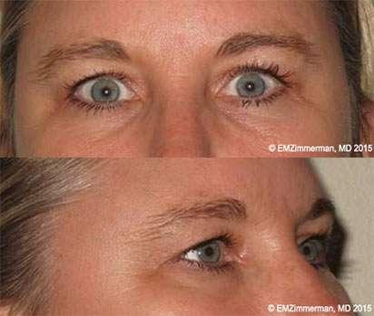 Upper blepharoplasty before