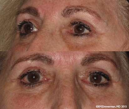 upper - lower bleph after