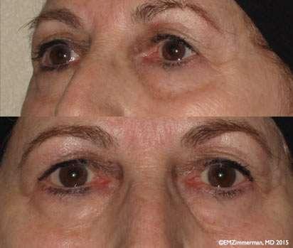 upper - lower bleph before
